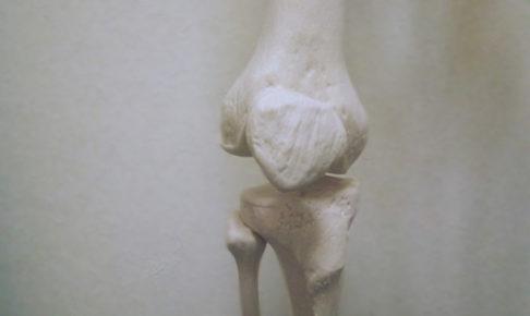 変形性膝関節症の原因イメージ